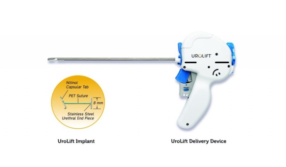 urolift_delivery_device